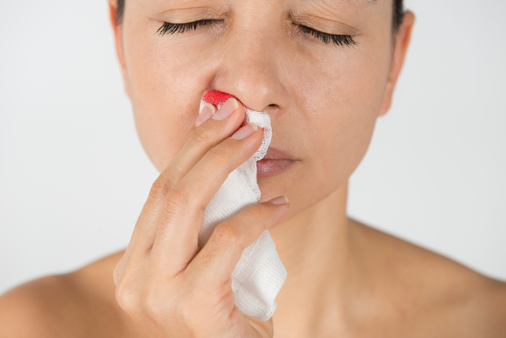 When to See a Doctor for Nosebleeds